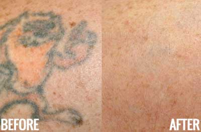 laser-tattoo-removal-1