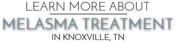 Melasma Treatment Knoxville