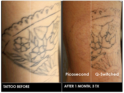 knoxville laser tattoo removal