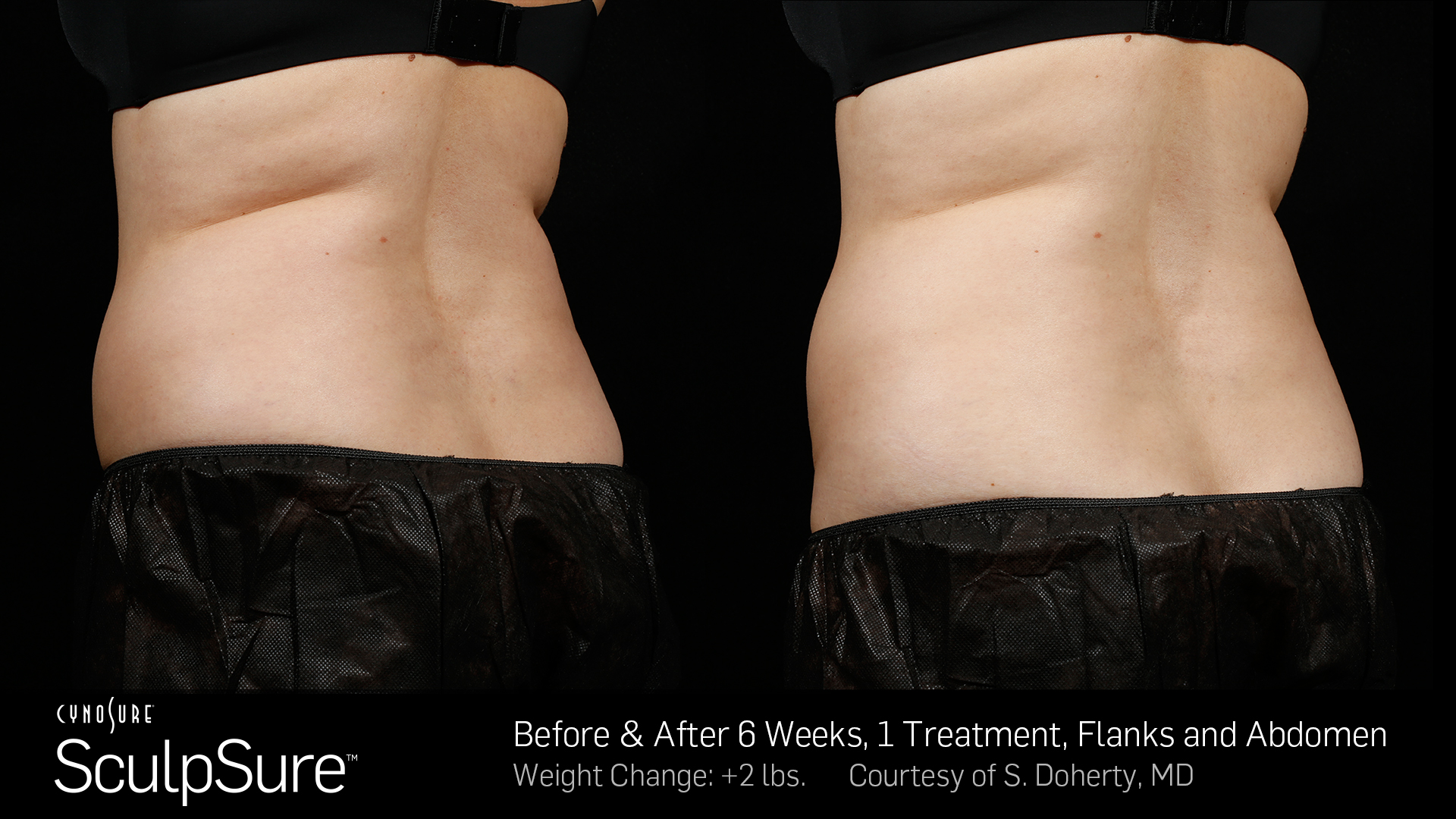 Sculpsure Before and After Photos | Cosmetic Dermatology Knoxville TN